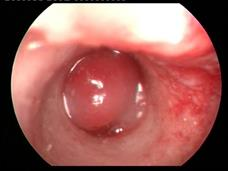 Ear polyp in a cat