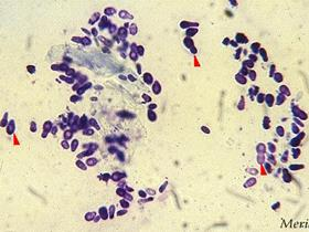 Malassezia Yeast (stained cytology) (Origin: Mérial)