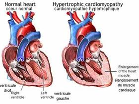 Heart diseases hypertrophic cardiomyopathy