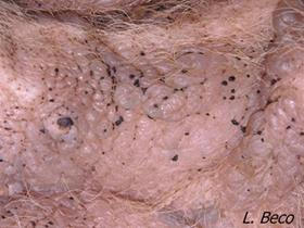 Idiopathic Mucinosis in Shar Peï Multiple vesicles containing a viscous exsudate