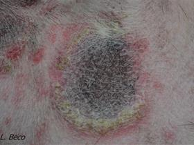 Target lesion - Suggested guidelines for using systemic antimicrobials in bacterial skin infections (Pyoderma)